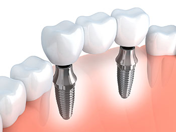 Größere Zahnlücken