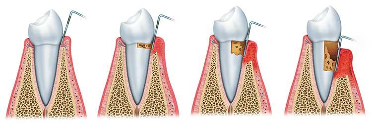 Parodontitis_38430064_M750