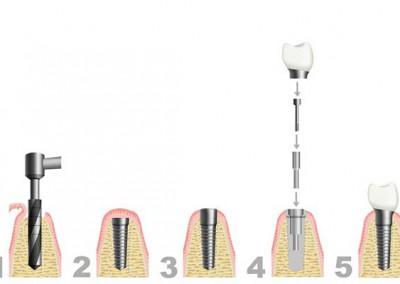 Was passiert bei einem Implantat-Eingriff?
