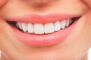 Warum-Lächeln-03B67920_300